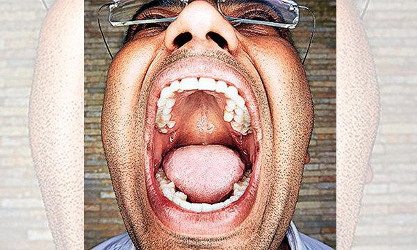"""หนุ่มอินเดีย""""ฟันเยอะที่สุดในโลก"""" มีฟันเต็มปากถึง 37 ซี่!!"""