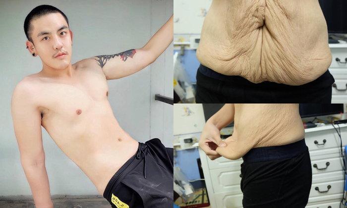 หนุ่มแชร์วิธีเปลี่ยนผิวหนังเหี่ยวย่นจากน้ำหนักที่ลดลงมาก