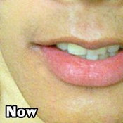 ศัลยกรรมปากบาง