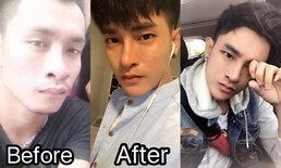 หนุ่มศัลยกรรมหลาย 10 ครั้ง เปลี่ยนหน้าตาธรรมดาให้หล่อปัง