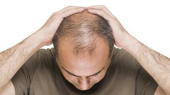 5 สาเหตุที่ทำให้ผู้ชายหัวล้าน เลี่ยงได้ เลี่ยงด่วน