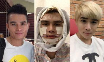เมื่อผมตัดสินใจไปทำศัลยกรรมที่เกาหลี...ผลที่ได้มันเป็นแบบนี้...