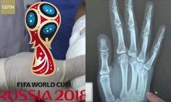 """เจ็บนี้อีกนาน หนุ่มจีนเชียร์ฟุตบอลโลก ลุ้นหนักจน """"มือหัก"""""""