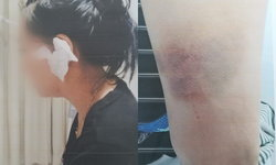 ตำรวจราชบุรี ตบสาวแก้วหูฉีก หวังข่มขืน เหยื่อร้องขอความเป็นธรรม