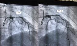 อุทาหรณ์สายควัน! หมอผงะคนไข้อายุ 23 ต้องทำบอลลูนหัวใจ หลังพบลิ่มเลือดอุดตัน