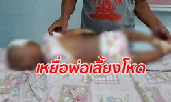 พ่อเลี้ยงใจร้าย ซ้อมเด็กหญิงวัย 1 ขวบ เลือดคั่งในสมอง สภาพศพเขียวช้ำทั้งตัว