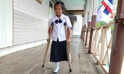 รอยยิ้มนักสู้ เด็กหญิงเหยื่อมะเร็งถูกตัดขาหัวใจแกร่ง เรียนดีเป็นที่ 1 ของห้อง