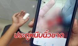 หนุ่มวัย 18 เคราะห์ร้าย กระเป๋ารีบไล่ลงป้าย ประตูรถเมล์หนีบนิ้วขาดหายไป 1 ข้อ