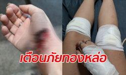 เตือนภัยกลางกรุง สาววิ่งหนีชายขี้ยา-ล้มเพราะถนนเป็นหลุม พ้อตำรวจไม่ตามจับจริงจัง