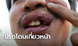 พ่อลูกขี่รถโดนสายสื่อสารเกี่ยวเข้าหน้า ฟันหัก-เหงือกฉีก เกือบพาไปตาย