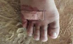 พ่อร้องสื่อ ลูกชาย ป.1 โดนเพื่อนขาโจ๋แทงเท้าเป็นแผล แต่ครูเมินช่วย