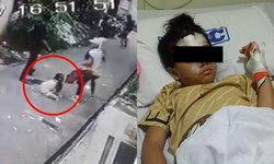เด็กหญิง 8 ขวบไม่หวั่นปืน! สู้ 4 โจรปล้นพ่อแม่ จนจมูกหัก-นอนโรงพยาบาล