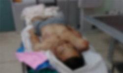 ฟิวส์ขาด-หนุ่ม 19 ผิดใจหนุ่ม 28 เลือดร้อนจ่อยิงเผาขนนอนจมกองเลือด