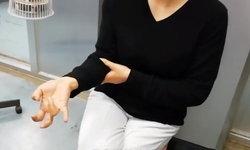 อุทาหรณ์! สาวจีนเล่นแต่มือถือตลอดลาพักร้อน 1 สัปดาห์ นิ้วล็อกต้องให้หมอช่วย