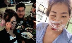 สาวสวยสุดช้ำ สามีทาสยาเสพติดคลั่งทำร้ายปางตาย จมูกหัก-หน้าร้าว