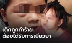 จี้หน่วยงานเยียวยาเด็กหญิง 7 ขวบ ถูกครูตีเลือดคั่ง-ขวัญผวา