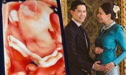 """""""กรณ์ ณรงค์เดช"""" เปิดภาพอัลตร้าซาวด์ ลูกในท้อง """"ศรีริต้า"""" ชัดเลย! จมูกโด่งมาก"""