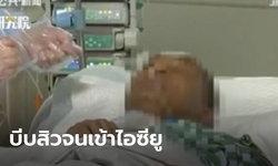 หนุ่มจีนติดเชื้อรุนแรงปางตาย ถูกหามเข้าไอซียู หลังบีบสิวใต้ริมฝีปาก