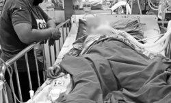 สุดยื้อ หญิงถูกไม้กวาดแทงอวัยวะเพศเสียชีวิตแล้ว หลังนอนโคม่านาน 1 เดือน