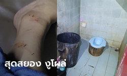 สาวสุดซวย มาเยี่ยมเพื่อนที่บ้าน ขอเข้าห้องน้ำ เจองูโผล่จากโถส้วมมากัดขา