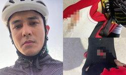 """""""กัน นภัทร"""" เจ็บหนัก ประสบอุบัติเหตุขณะปั่นจักรยาน แผลถลอกเต็มตัว เสื้อขาดรูเบ้อเร่อ"""