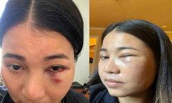 หญิงไทยในซานฟรานฯ เผยนาทีชีวิตถูกทำร้ายบนรถไฟ ระวังเต็มที่แล้วยังไม่รอด