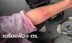 2 สื่อมวลชน จ่อฟ้องเรียกค่าเสียหายตำรวจ หลังถูกยิงกระสุนยางใส่จนบาดเจ็บ