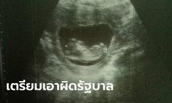 คุณแม่ชาวระยอง เตรียมแจ้งความรัฐบาล เหตุทารกเสียชีวิตในท้อง หลังฉีดซิโนแวคเข็มแรก