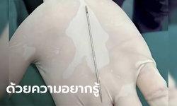 เด็กจีนวัย 13 ปี ยัดเข็มยาว 9 ซม. เข้าหนอนน้อย ทนเจ็บครึ่งเดือน กว่าจะไปหาหมอ