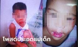 โซเชียลรับไม่ได้ สาวโพสต์รูปเด็ก 2 ขวบ บาดเจ็บเลือดกบปาก ขู่อีกไม่นานจะปาดคอ