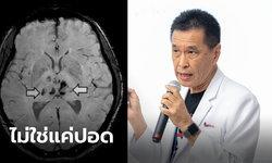 """""""หมอธีระวัฒน์"""" เผยเชื้อโควิด-19 ไม่ได้ทำร้ายแค่ปอด มีผลต่อสมอง-หัวใจด้วย"""