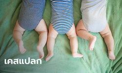สาธารณสุขเม็กซิโกมึน! ทารกแฝดสามติดโควิด-19 แต่พ่อแม่ไม่พบเชื้อ