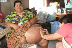 หญิงอ้วนท้องโตผิดปกติ วอนรัฐเข้าช่วยเหลือ
