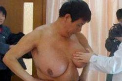 เฮ! ชาวจีนวัย 53 ผ่าตัดนมเท่าฟุตบอลแล้ว