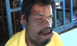 หนุ่มกาญจน์เป็นโรคประหลาด ริมฝีปากใหญ่ผิดปกติ