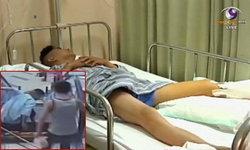 เอาอีกแล้ว! บันไดเลื่อนจีนหนีบขาพนักงานจนต้องตัดทิ้ง