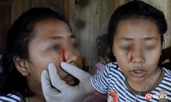 แม่วอนช่วย ลูกสาวป่วยประหลาด เลือดไหลออกผิวหนัง