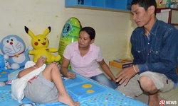 เคราะห์ซ้ำกรรมซัด! เด็ก 3 ขวบตกบันไดลามเป็นมะเร็ง ต้องตัดขาทิ้ง