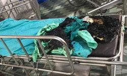 ชายเมาอาละวาดเผาเตียงรถเข็น-ผู้ป่วย รพ.ศูนย์อุดรฯ