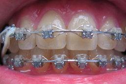 สธ.ตรวจศรีบุณยานนท์พบเด็กดัดฟัน97คน