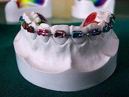 ทพ.ชี้จัดฟันคลินิคเถื่อน เสี่ยงอันตราย