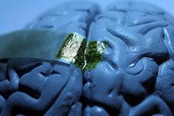 ครั้งแรก!!สหัฐฯพบวิธีตรวจสมอง หนทางรักษาอัลไซเมอร์