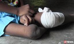 เด็ก 6 ขวบรอดตายรถคว่ำ แต่พิการ-กำพร้าแม่ วอนช่วยด้วย