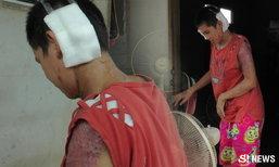 สาวโดนผัวเมาราดน้ำกรด เสียโฉม-ช้ำใจ เลี้ยงลูก 2 ตั้งท้องอีกคน