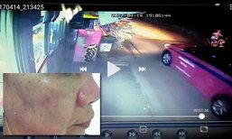 หนุ่มวอนขอเบาะแส แท็กซี่ทำร้ายแม่เพื่อน-ฉกกุญแจรถ