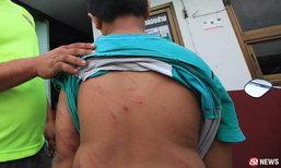 เด็กชายเดินเท้า 5 กม. หนีพ่อแท้ๆ หลังถูกตีจนเลือดซิบ