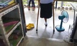 สะเทือนใจ ! เด็กหญิงวัย 13 ถูกรถชนจนต้องตัดขา ซ้ำครอบครัวฐานะยากจน
