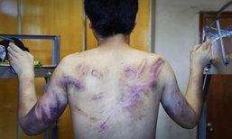 ชายนัดเจอสาวชาวเน็ต กลับถูกจับขัง-ทำร้ายร่างกาย ช้ำทั่วร่าง