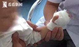 เจ็บแทน! พ่อแม่จีนเฉือนฝ่ามือลูกชาย 2 ขวบ เชื่อเพิ่มความอยากอาหาร