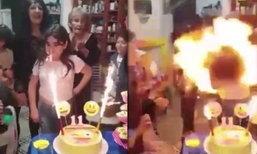 วันเกิดสุดสยอง! หนูน้อยโดนไฟไหม้ผมขณะเตรียมเป่าเทียนบนเค้ก